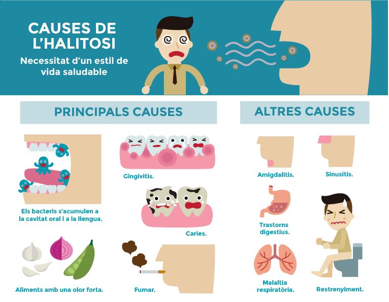 causes de l'halitosi